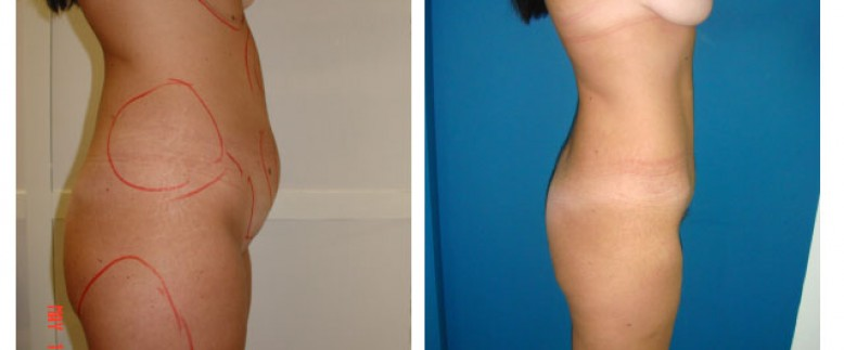 Breast lift + abdominoplasty