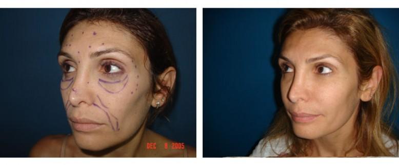 face lipofilling