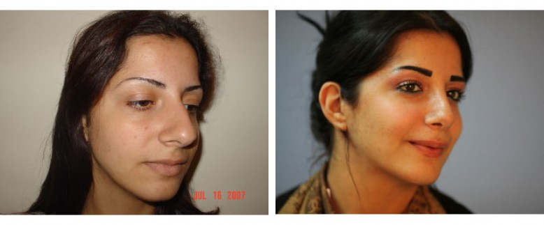 Rhinoplasty Open Technique