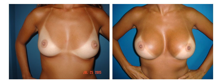 6_breast4